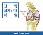관절내시경 수술, 전방십자인대파열 치료