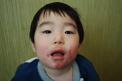 얼굴 아토피 치료 에피소드