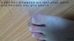 수포형 발가락 무좀 완치되다.