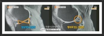 무릎연골수술 파열된 연골판 치료