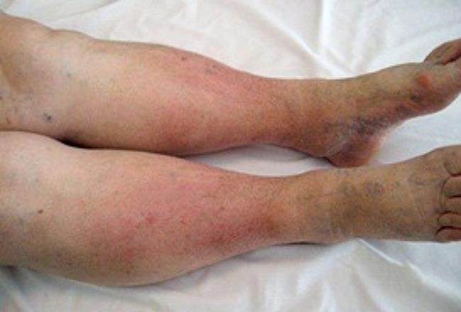 다리 붓는 증상 및 해결방법을 알아보자