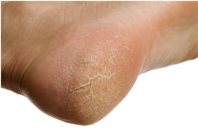 발뒤꿈치 각질제거 방법 7가지