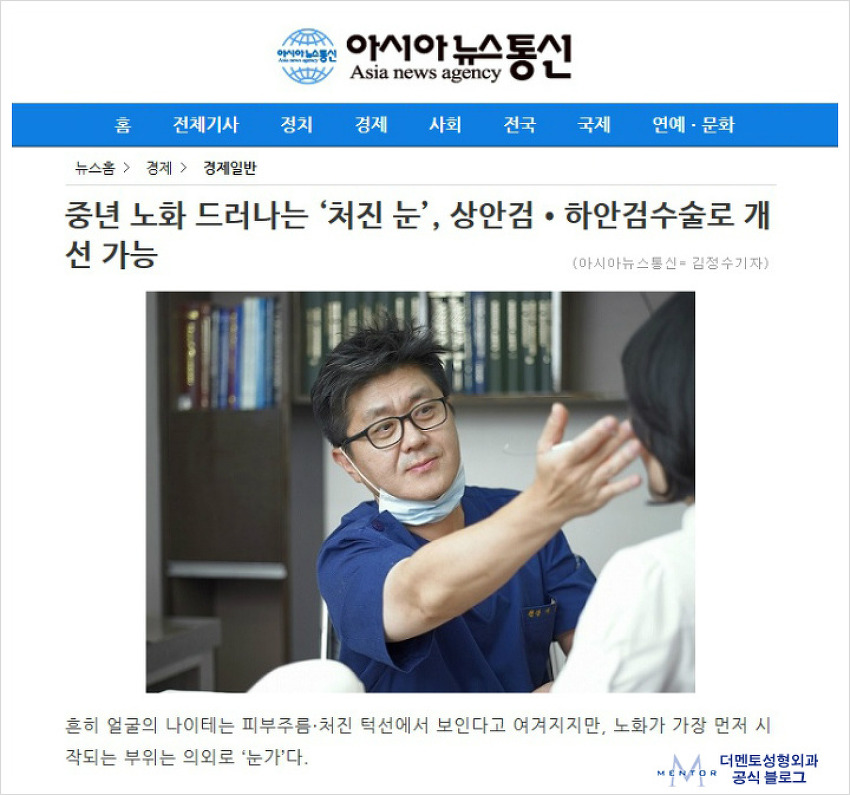 [아시아뉴스] 중년 처진눈, 상안검 · 하안검 수술 의학자문.