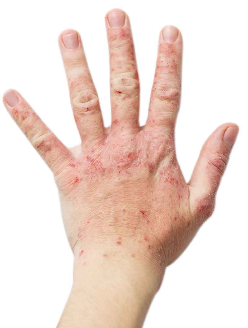 atopic dermatitis hand