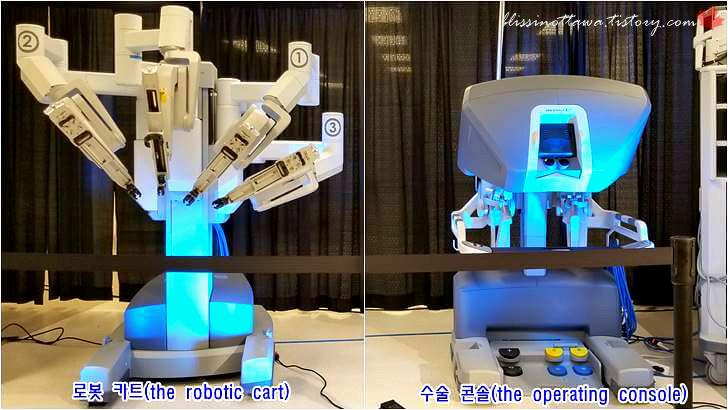 로봇 카트 및 수술 콘솔입니다